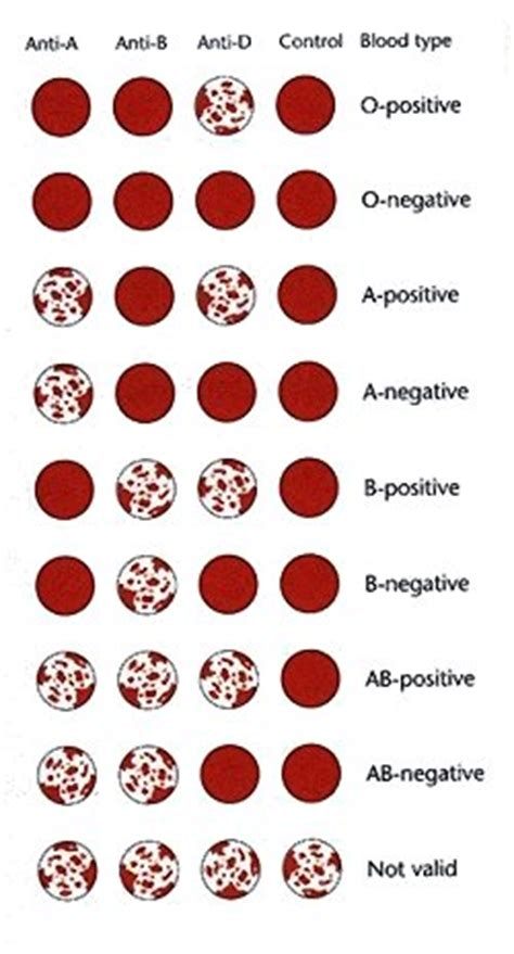 Blood Groups Blood Typing And Eldon Cards Access Revision Blood Type Pictures