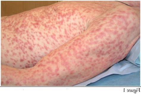 herpes zoster interno senza eruzione cutanea 191 herpes zoster existe una dieta