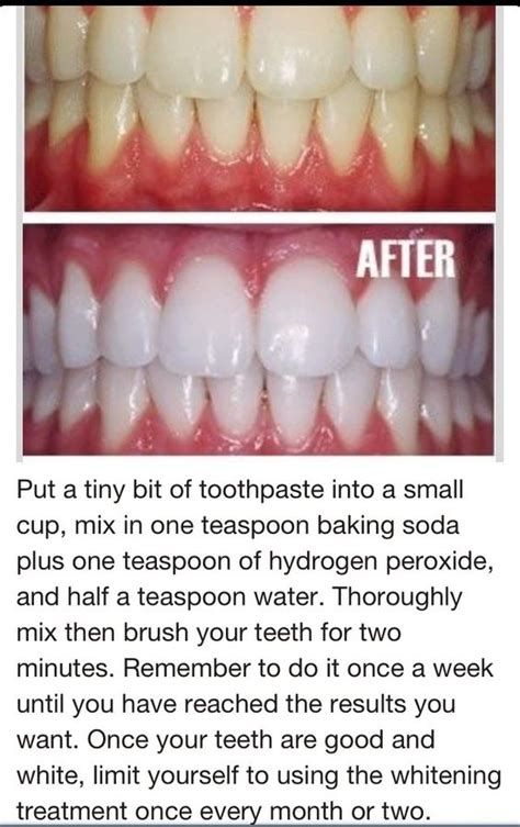 7 Reasons To Get Your Teeth Whitening Procedure Done By A Pro by Teeth Hydrogen Peroxide And Baking Soda On