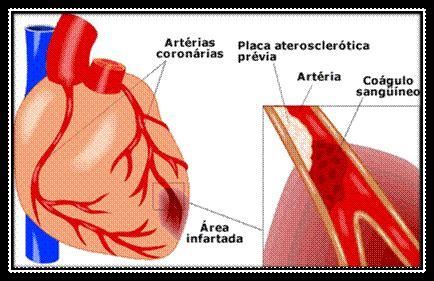 infarto del miocardio bandamobile tematicas primeros auxilios ataque cardiaco