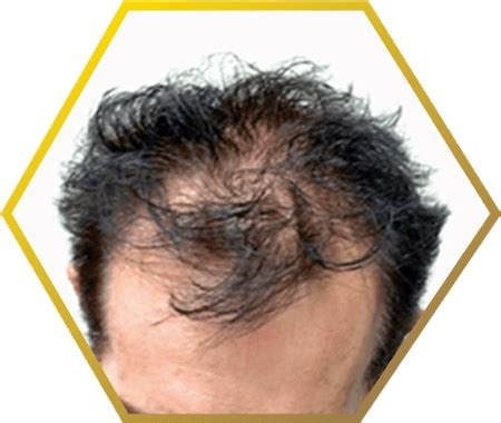 male pattern baldness quiz hair loss hair fall problems jonsson protein sg
