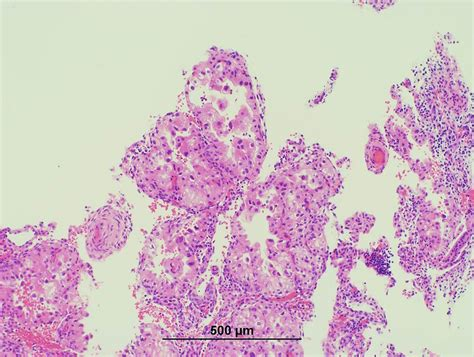 Arias Stella Reaction Pathology Outlines by Pathology Outlines Arias Stella Reaction