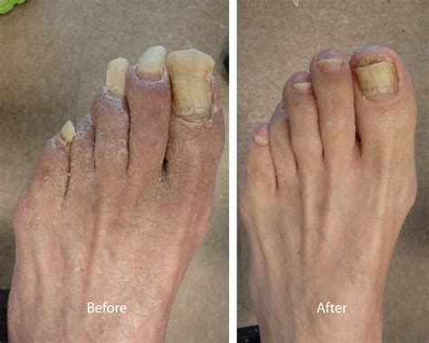 how to design toenails at home how to trim pincer toenails how you can do it at home
