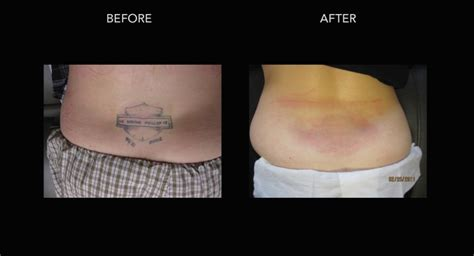 tattoo removal in delhi permanent removal delhi mumbai painless