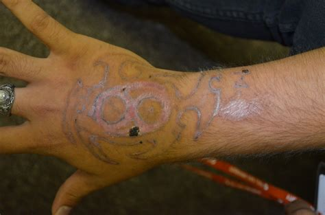 tattoo healing gone wrong tattoo removal disasters