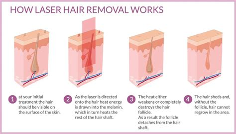 do it yourself hair laser removal bare essentials