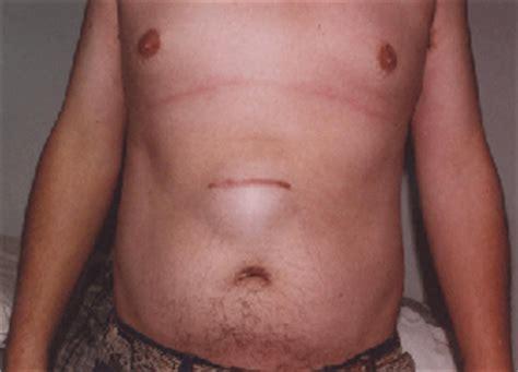 hernia surgery cost abdominal hernia surgery india price abdominal hernia surgery mumbai