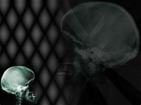 skull x ray 03 medicine powerpoint templates