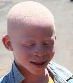 what color do albinos albinism is beautiful