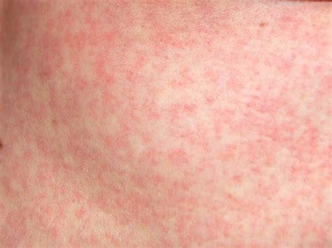 Kinderen Rash maculopapuleuze kinderziekten
