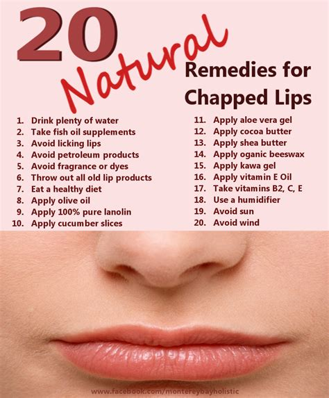20 remedies for chapped monterey bay