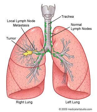 lung cancer diagrams lung cancer department of cardiothoracic surgery