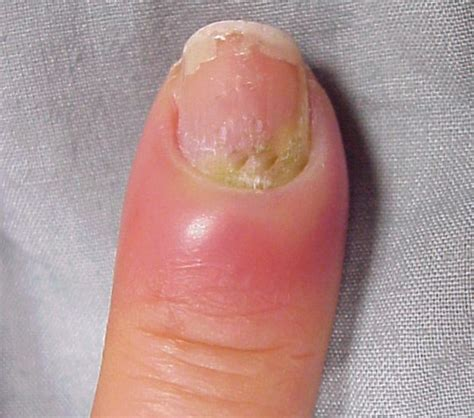 infected nail bed hangnail infection pictures treatment causes and remedies