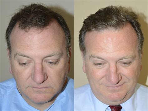 before and after photos of hair transplant surgery with an hair transplants for men photos miami fl patient 40182
