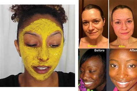 Turmeric facial mask   Searchlight