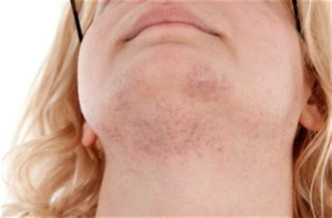 stop womens chin hair growth hirsutism or excess facial hair in women prevention