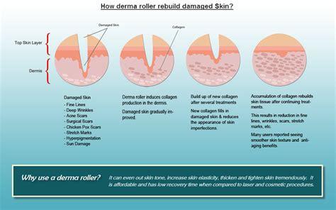 i got rid of all my deep rolling acne scars with msm cream how to get rid of acne scars with the amazing dermaroller