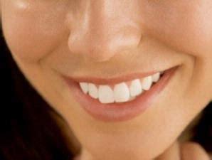 Biaya Pemutihan Gigi Jogja memutihkan gigi seberapa aman klinik gigi dental