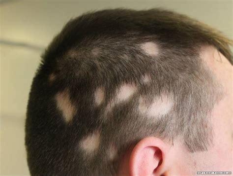 ophiasis pattern hair loss alopecia areata primary care dermatology society uk