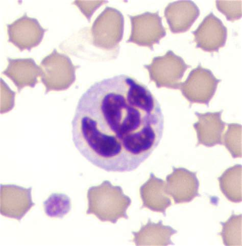 high white blood cell count in dogs clemex veterinary pathology labs could benefit from recent progress in microscopy