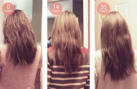 keranique before and after photos guia de compras em miami tratamento para queda de cabelo