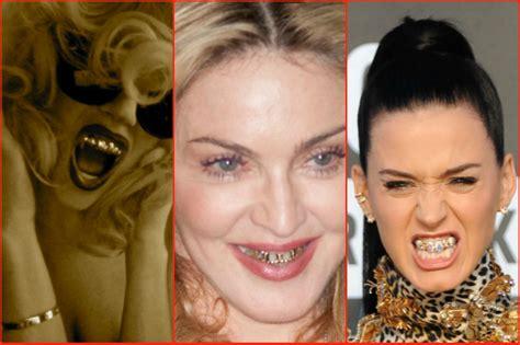 apparecchio interno denti costo da madonna a bieber pazzi per il grillz denti d oro e di