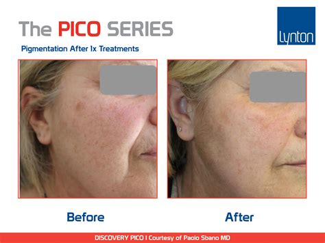 pico laser tattoo removal cost discovery pico series picosecond laser information