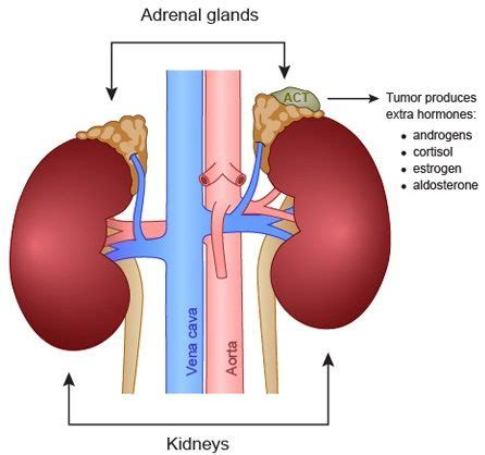 Adrenal Gland Detox Symptoms by Adrenal Gland Tumor Symptoms Diagnoses Treatment