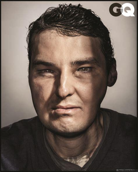 gunshot wound survivor got incredible facial transplant