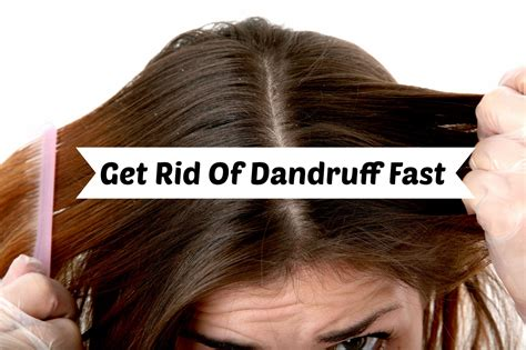 how to get rid of dandruff 10 simple and efficient ways to get rid of dandruff permanently viral plots