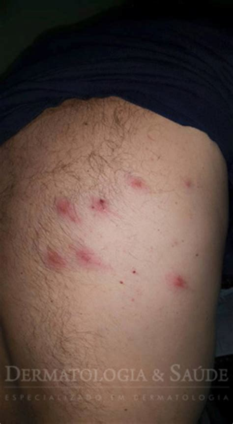 de bed bugs bed bugs cimid 237 ase