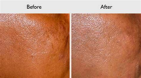 Treatment Laser Pores treating large pores