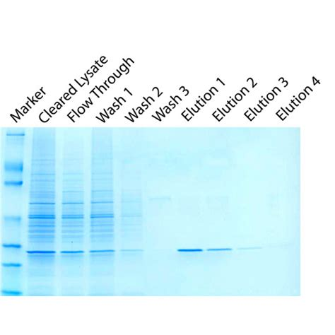 protein of bacteria isolation of gst tagged recombinant proteins from bacteria