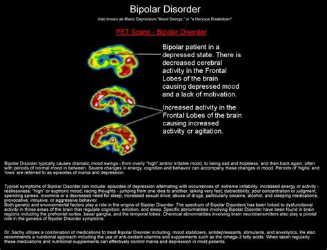 what causes mood swings in bipolar disorder bipolar disorder bipolar disorder pinterest