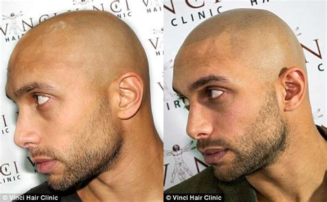 bald men are getting fake hair tattoos