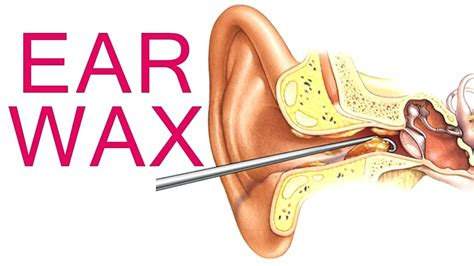 diagram of ear canal with wax diagram ear diagram ear canal with wax