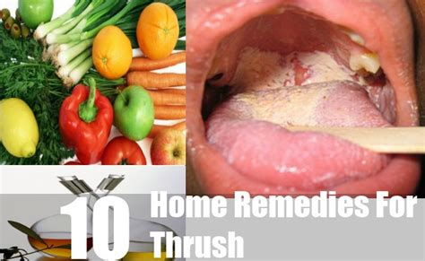 home remedy for thrush