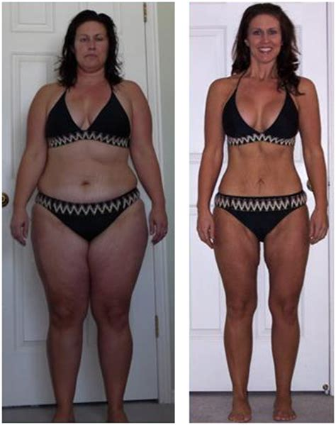 Skinny legs before and after 73 weight loss before after png
