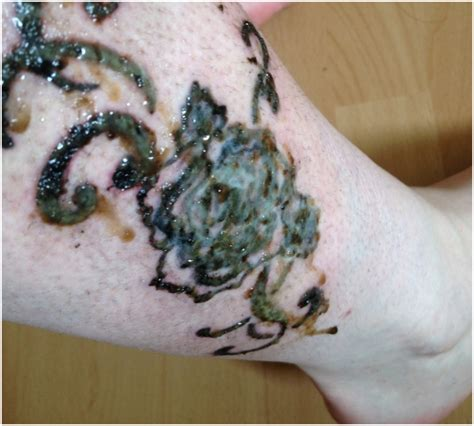 infected tattoo symptoms causes signs remedies