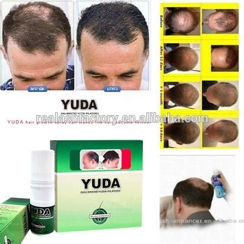 best hair growth pills for men treatments for sexual professional hair products best men hair regrowth oil for