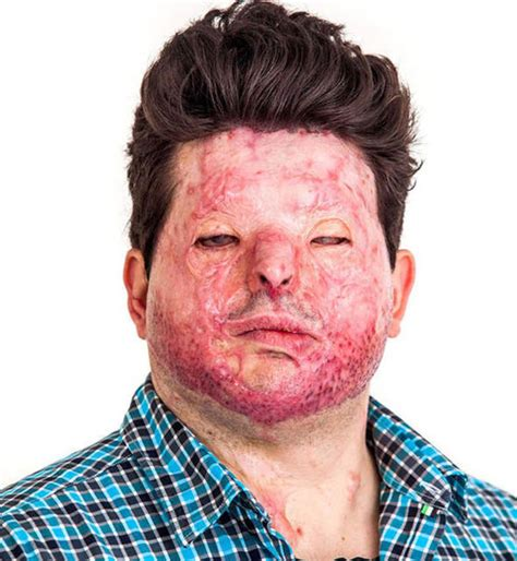 burn victim meaning acid attacks burns centre calls for cldown on sale or
