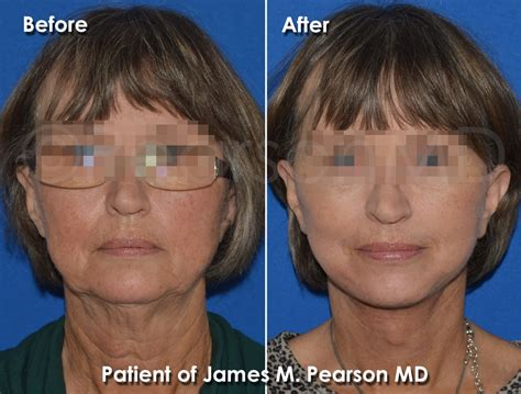haircuts that help disguise or lift face mini facelift dr james pearson facial plastic surgery