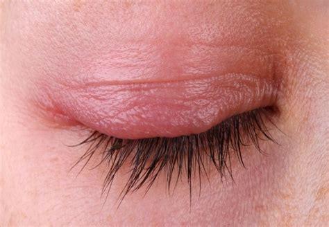 symptoms of pink eye conjunctivitis causes treatment symptoms and risk factors vitamins estore