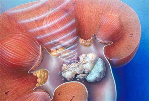 ossalati di calcio alimenti da evitare calcoli renali e dieta da seguire i consigli di luganocare