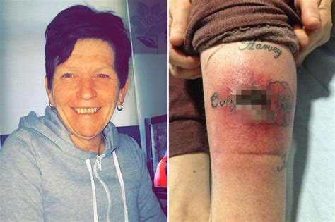 tattoo bone infection gran left with gruesome gaping hole in leg after tattoo