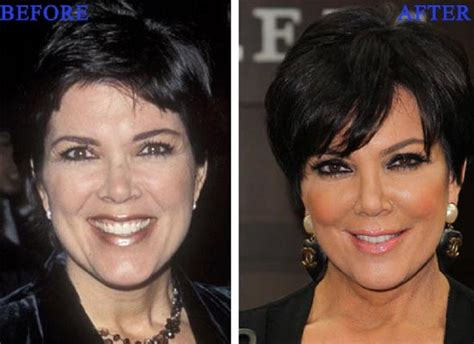 celebrity plastic surgery 24 before after pictures 2015 celebrity kris jenner facelift plastic surgery before