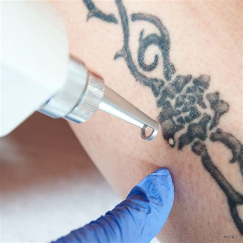 school for tattoo removal removal treatments california skin institute