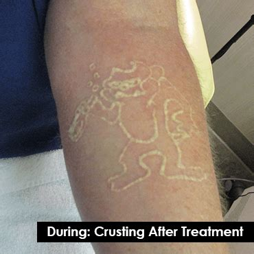 skin renew laser tattoo removal skin renew laser removal crusting exle indy