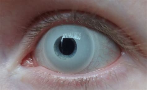 white color contacts eye contacts colors white www pixshark images