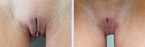 shaved genitals before and after labioplasti nedir nasıl yapılır aşamaları ve fiyatları